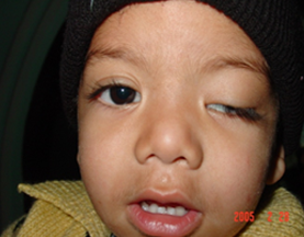 Paediatric Ophthalmology