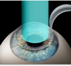 Advanced customized Blade free Lasik Surgery (iLasik)