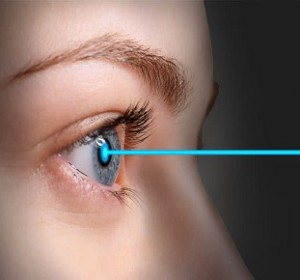 Femtosecond Laser Bladeless Cataract surgery